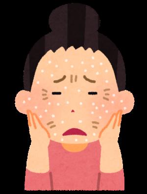 夏の肌対策法 ~夏でも乾燥するんです~